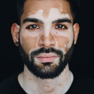 Faried Molai A Model From Netherlands Model Management