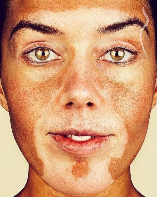 disease-facial-skin
